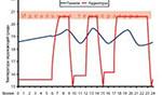 Основные преимущества радиаторов Irsap  - энергосбережение